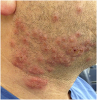 Fig 1. Vesicles and pustules.
